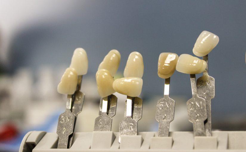 Piękne zdrowe zęby oraz powalający uroczy uśmieszek to powód do płenego uśmiechu.