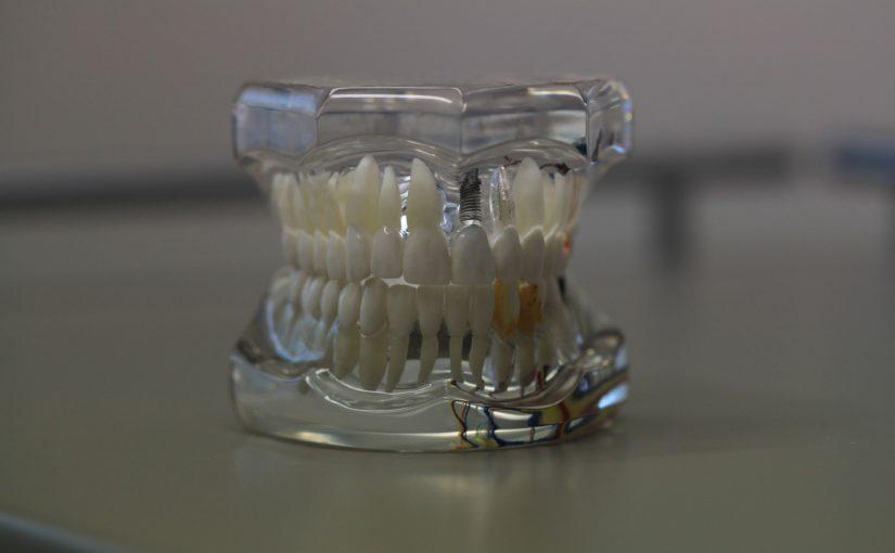 Zły sposób odżywiania się to większe niedobory w jamie ustnej oraz także ich zgubę